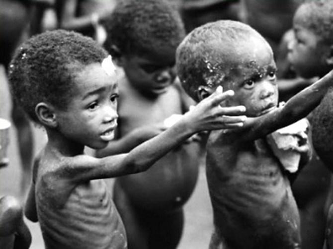 очень худые дети фото